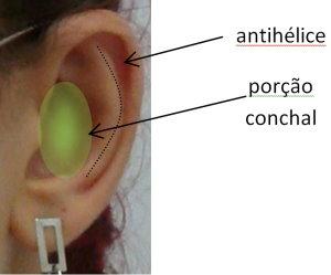 Otoplastia - Cirurgia de correção de orelhas em abano